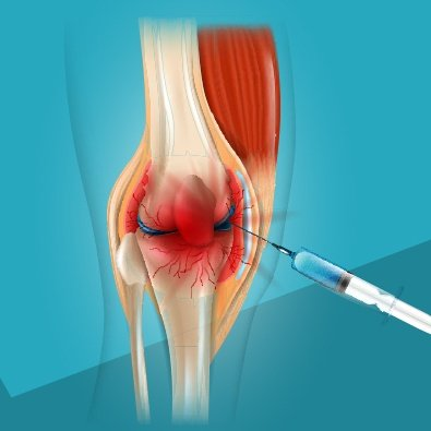 Animation of injection in knee