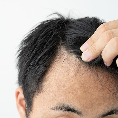Closeup of thinning hair line